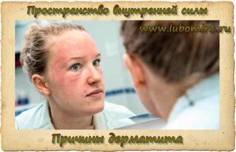 Причины дерматита